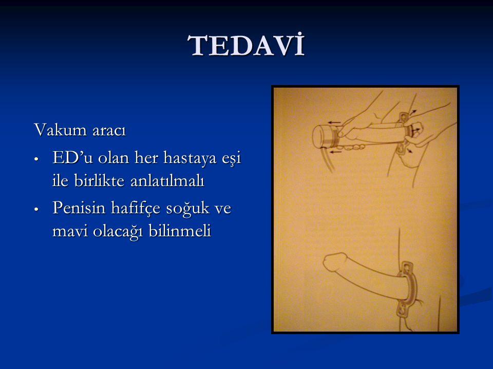 TEDAVİ Vakum aracı ED'u olan her hastaya eşi ile birlikte anlatılmalı