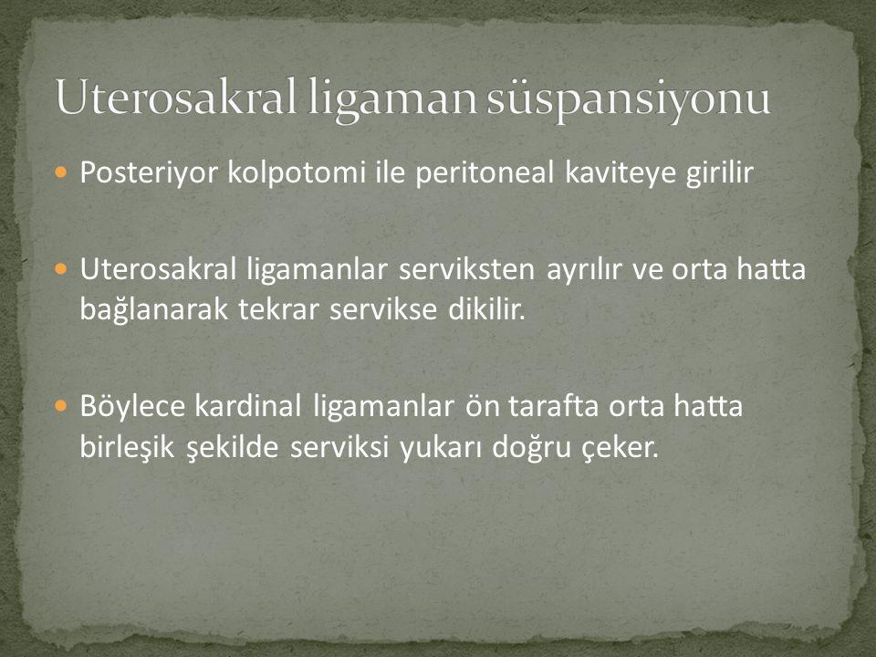 Uterosakral ligaman süspansiyonu