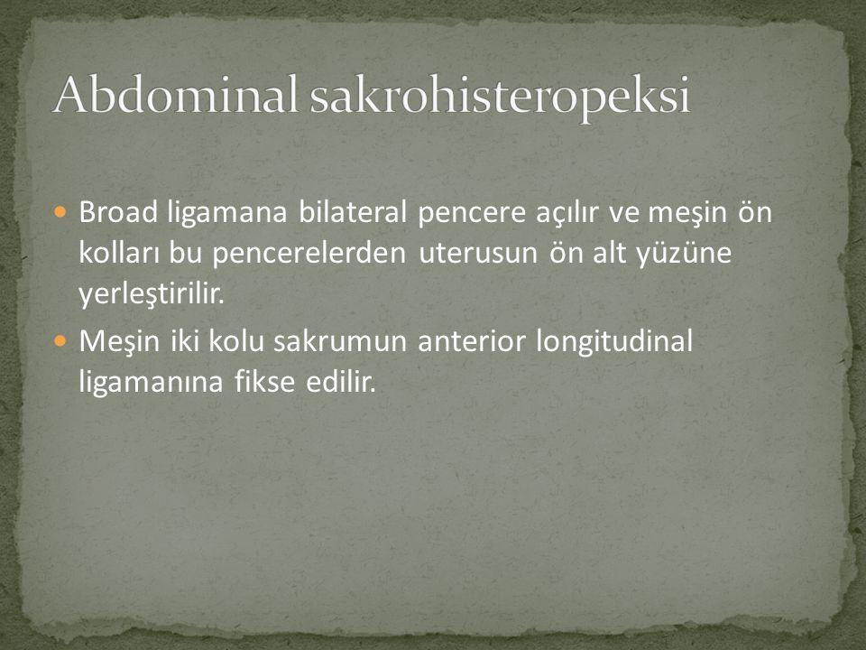 Abdominal sakrohisteropeksi
