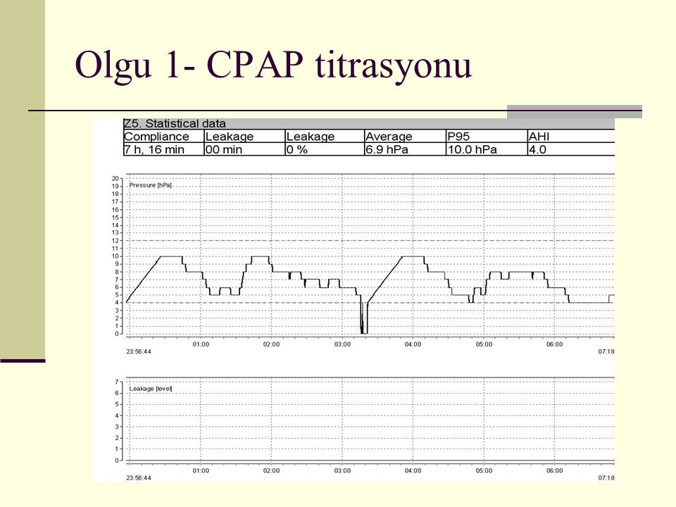 Olgu 1- CPAP titrasyonu