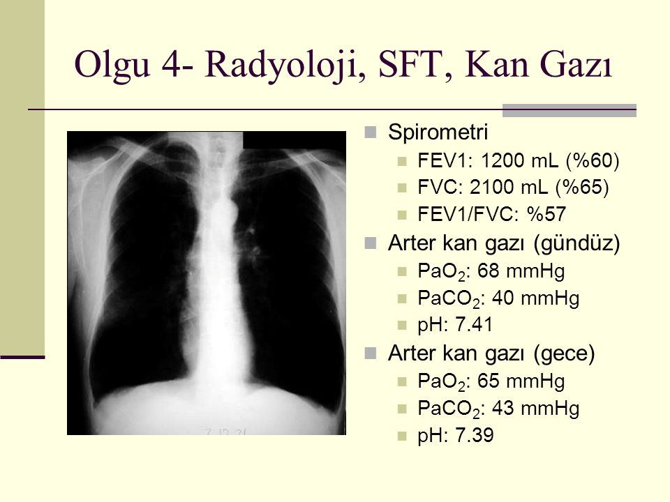 Olgu 4- Radyoloji, SFT, Kan Gazı