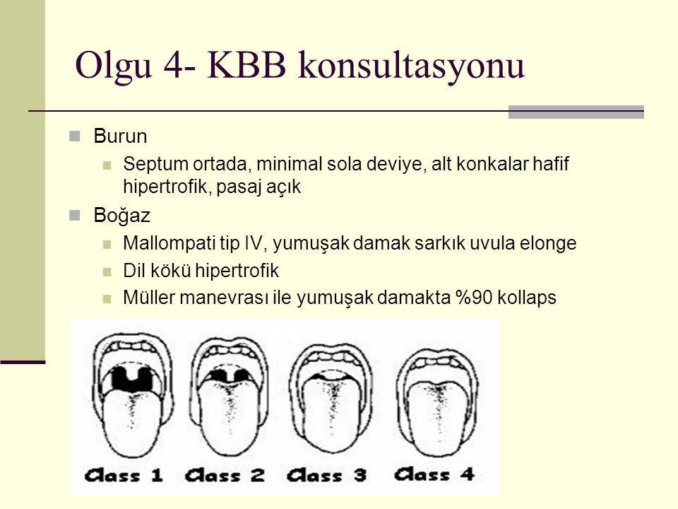 Olgu 4- KBB konsultasyonu