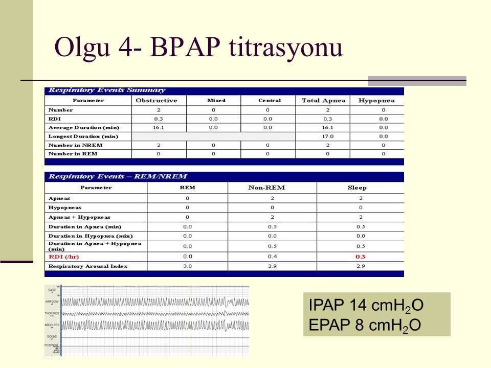Olgu 4- BPAP titrasyonu IPAP 14 cmH2O EPAP 8 cmH2O