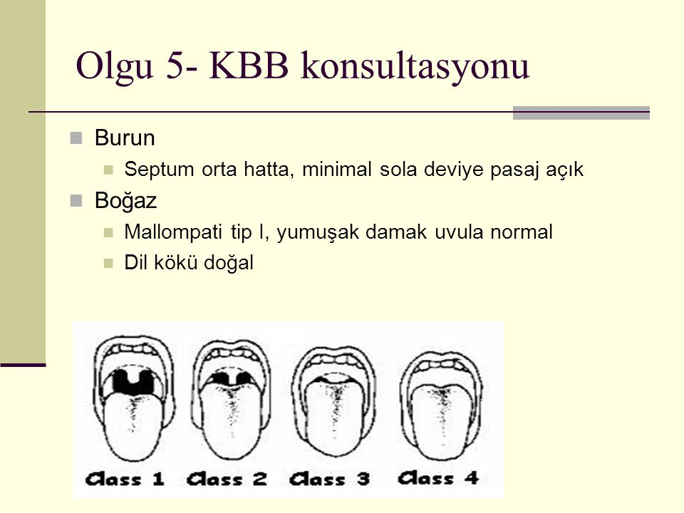 Olgu 5- KBB konsultasyonu