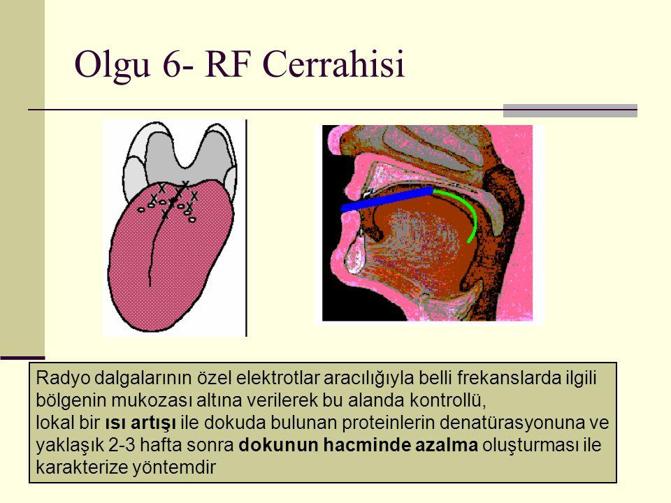 Olgu 6- RF Cerrahisi Radyo dalgalarının özel elektrotlar aracılığıyla belli frekanslarda ilgili.