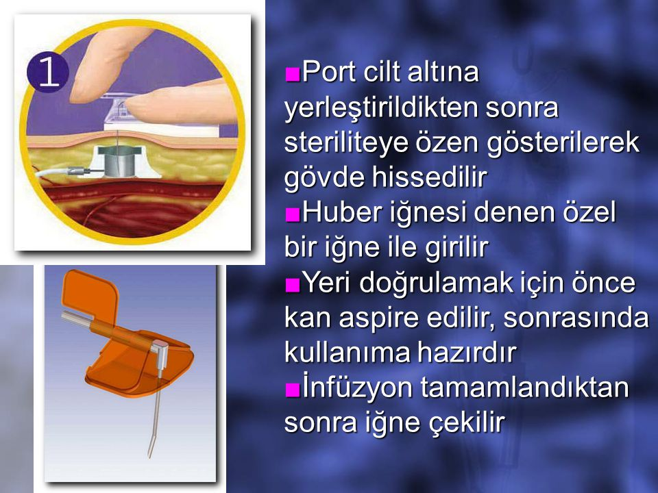 ■Port cilt altına yerleştirildikten sonra steriliteye özen gösterilerek gövde hissedilir