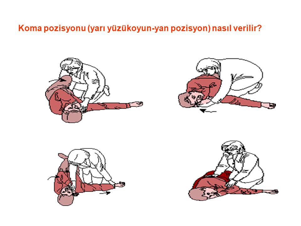 Koma pozisyonu (yarı yüzükoyun-yan pozisyon) nasıl verilir