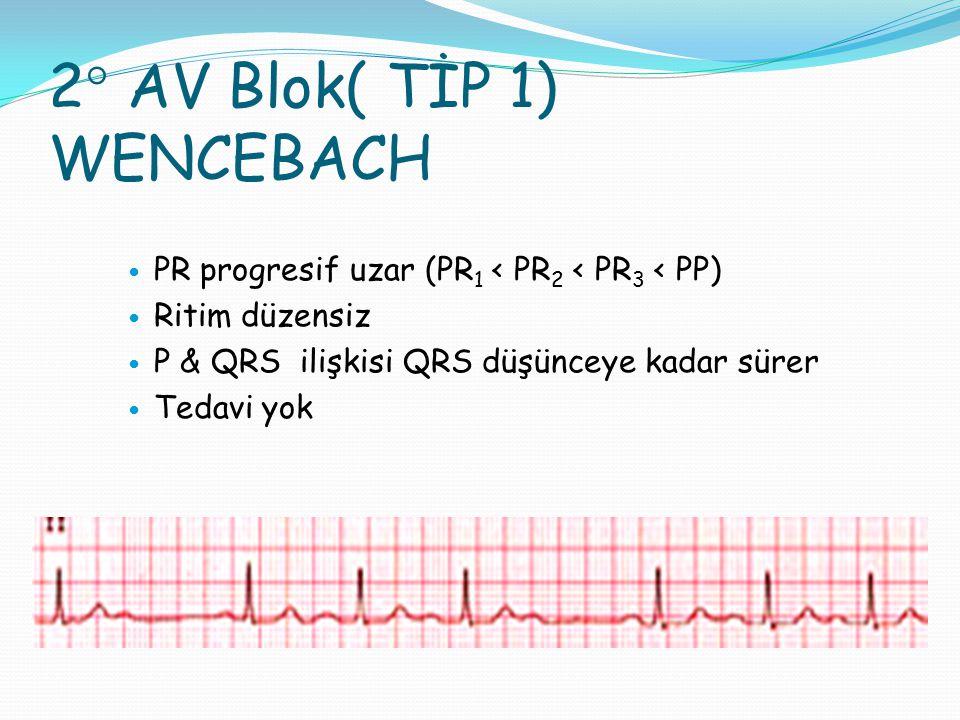 2° AV Blok( TİP 1) WENCEBACH