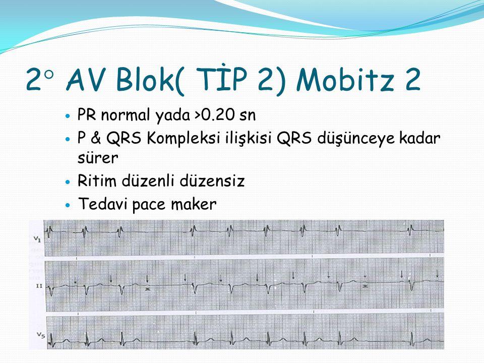 2° AV Blok( TİP 2) Mobitz 2 PR normal yada >0.20 sn