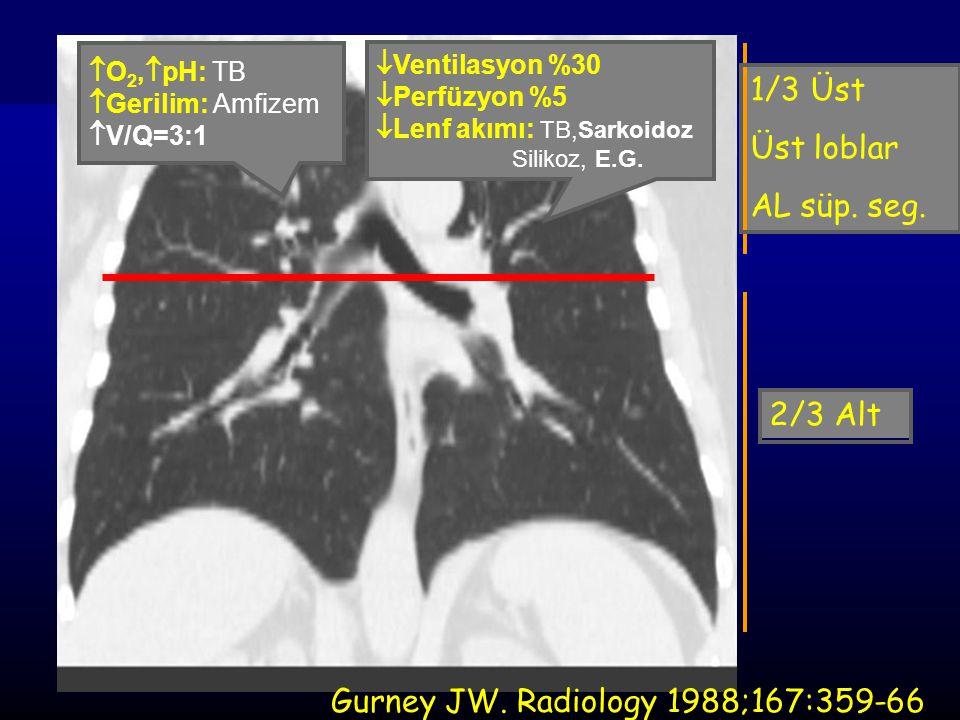 Gurney JW. Radiology 1988;167:359-66
