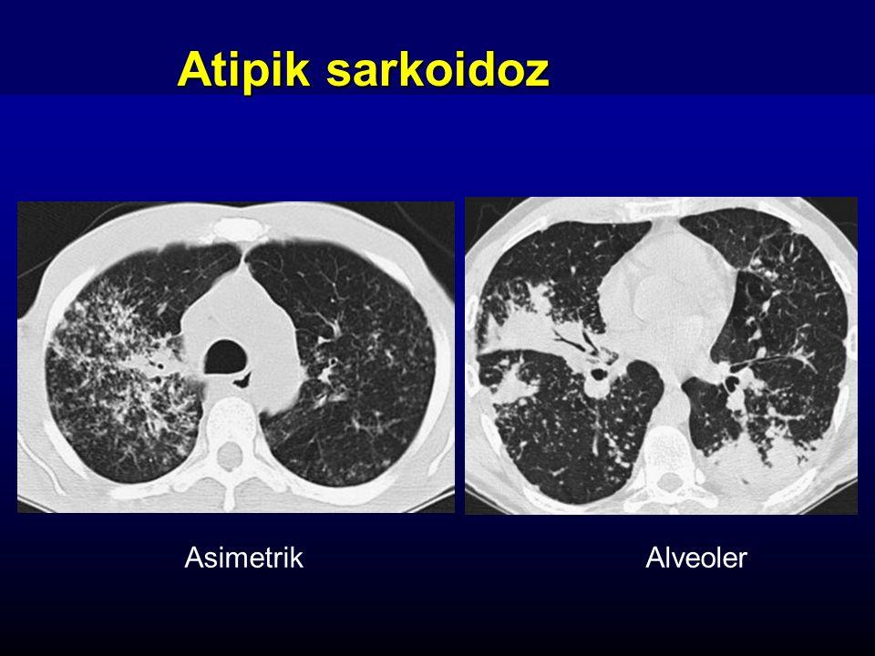 Atipik sarkoidoz Asimetrik Alveoler