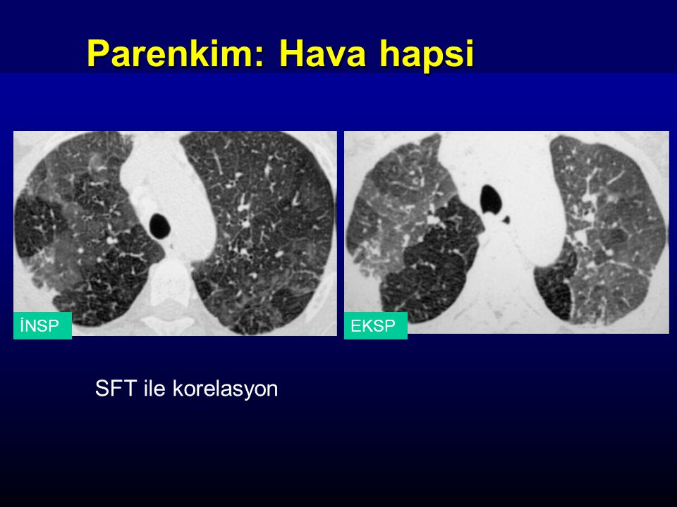 Parenkim: Hava hapsi SFT ile korelasyon İNSP EKSP