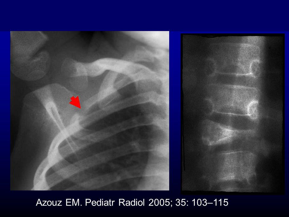 Azouz EM. Pediatr Radiol 2005; 35: 103–115