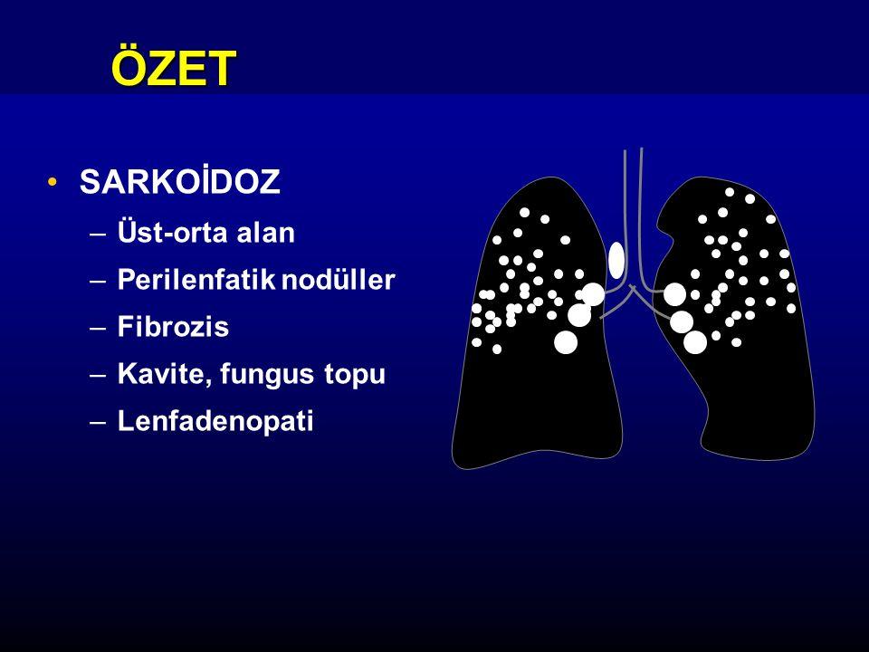 ÖZET SARKOİDOZ Üst-orta alan Perilenfatik nodüller Fibrozis