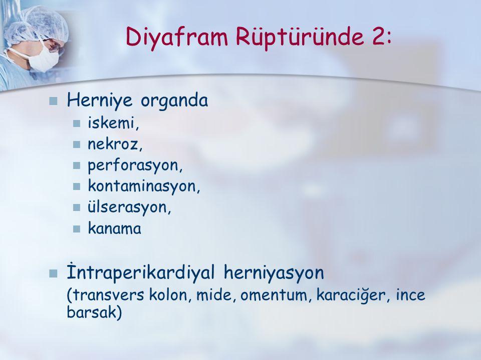 Diyafram Rüptüründe 2: Herniye organda İntraperikardiyal herniyasyon