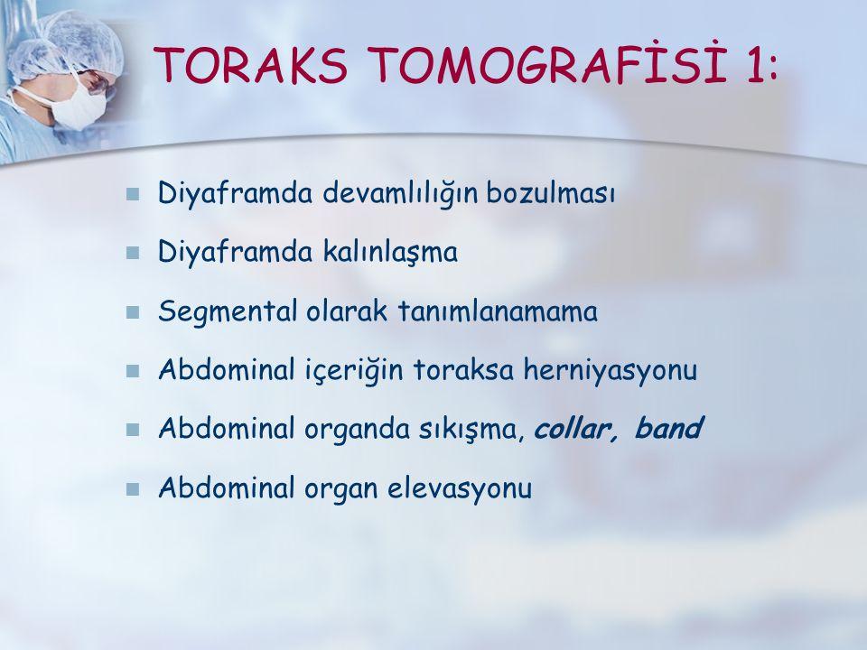 TORAKS TOMOGRAFİSİ 1: Diyaframda devamlılığın bozulması