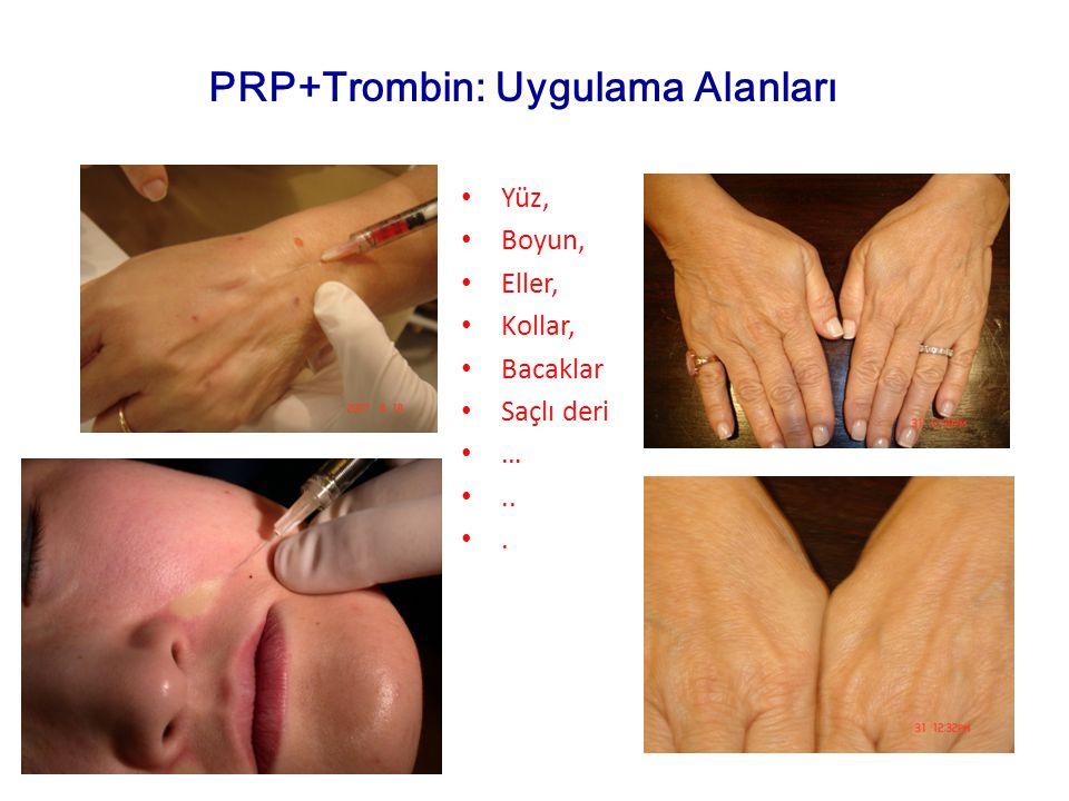 PRP+Trombin: Uygulama Alanları