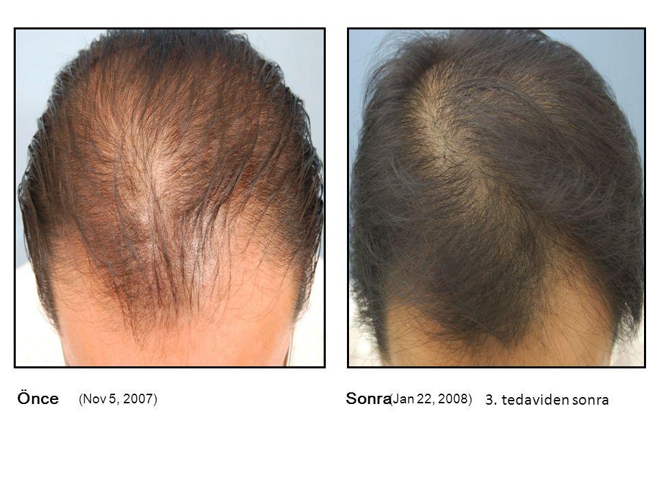 Önce (Nov 5, 2007) Sonra (Jan 22, 2008) 3. tedaviden sonra