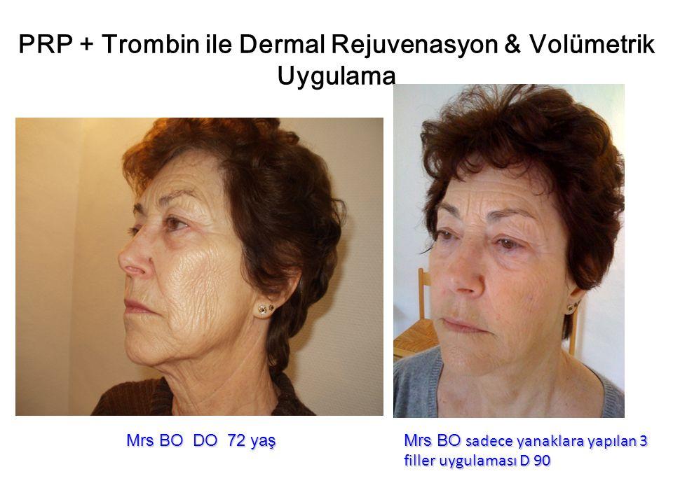 PRP + Trombin ile Dermal Rejuvenasyon & Volümetrik Uygulama