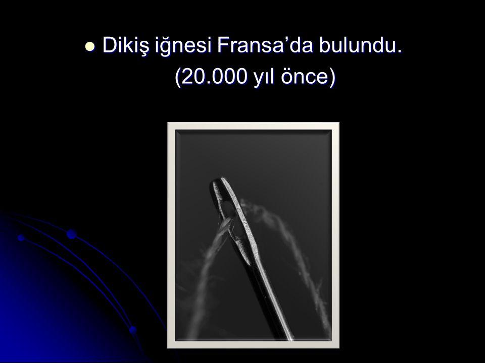 Dikiş iğnesi Fransa'da bulundu.