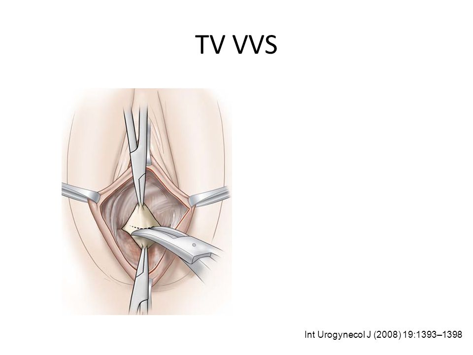 TV VVS Int Urogynecol J (2008) 19:1393–1398