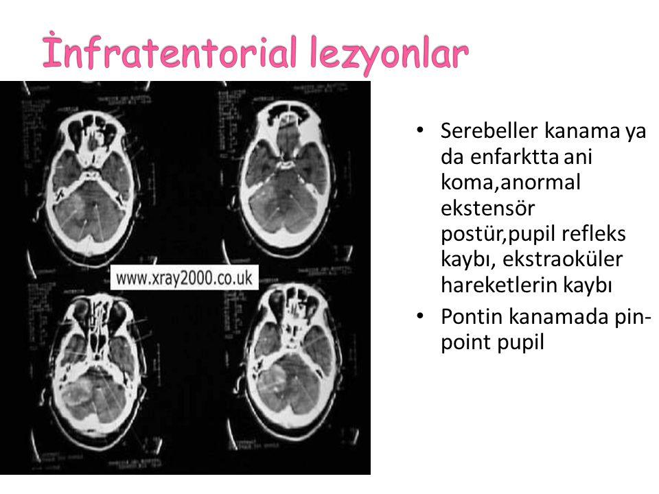 Serebeller kanama ya da enfarktta ani koma,anormal ekstensör postür,pupil refleks kaybı, ekstraoküler hareketlerin kaybı