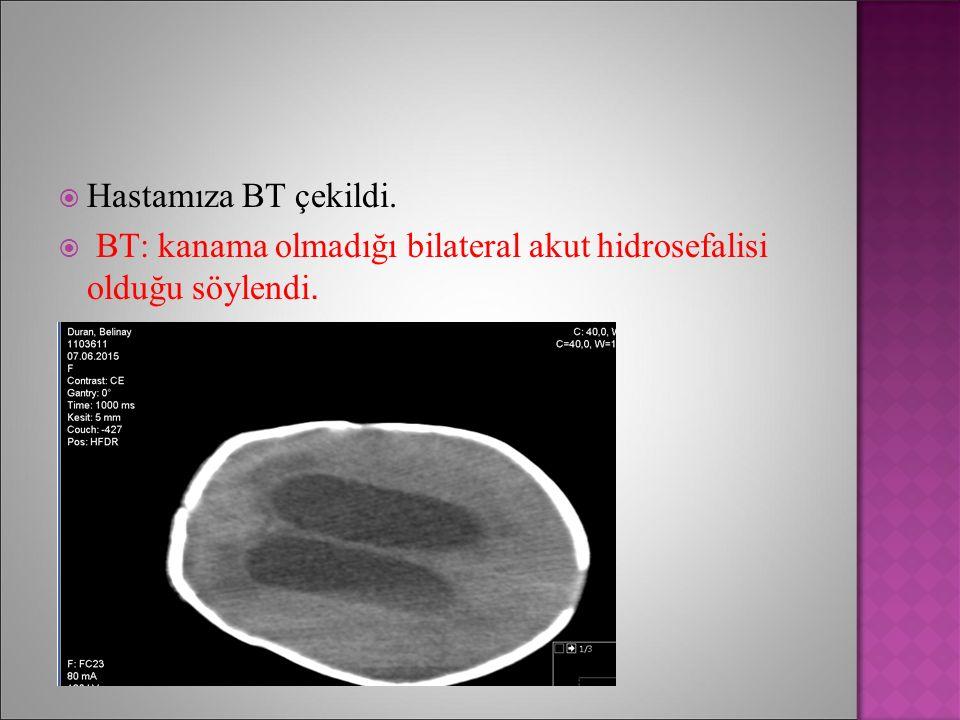Hastamıza BT çekildi. BT: kanama olmadığı bilateral akut hidrosefalisi olduğu söylendi.