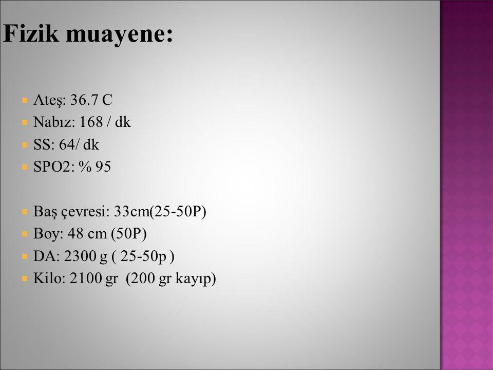 Fizik muayene: Ateş: 36.7 C Nabız: 168 / dk SS: 64/ dk SPO2: % 95