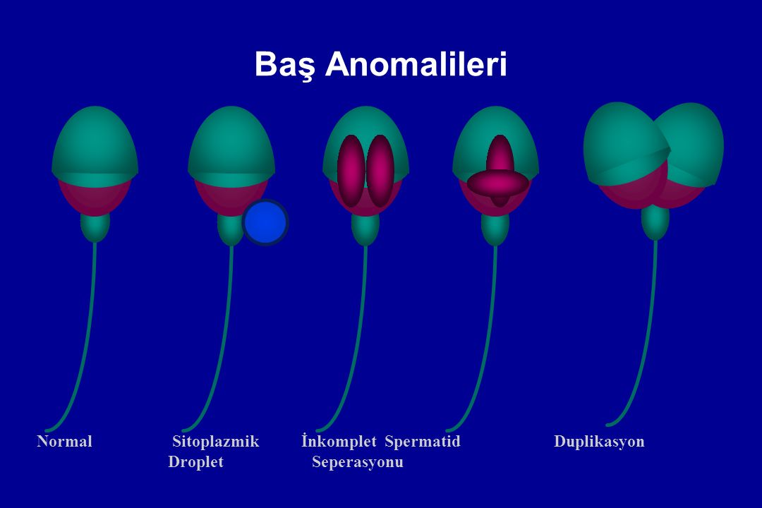 Baş Anomalileri Normal Sitoplazmik İnkomplet Spermatid Duplikasyon