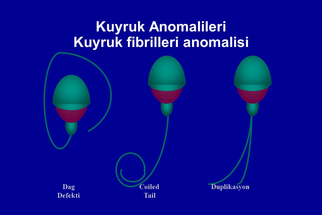 Kuyruk Anomalileri Kuyruk fibrilleri anomalisi