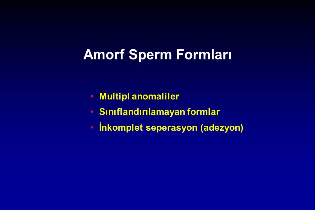 Amorf Sperm Formları Multipl anomaliler Sınıflandırılamayan formlar