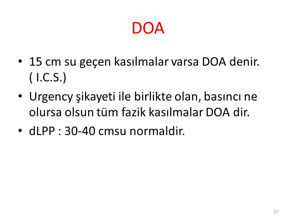 DOA 15 cm su geçen kasılmalar varsa DOA denir. ( I.C.S.)