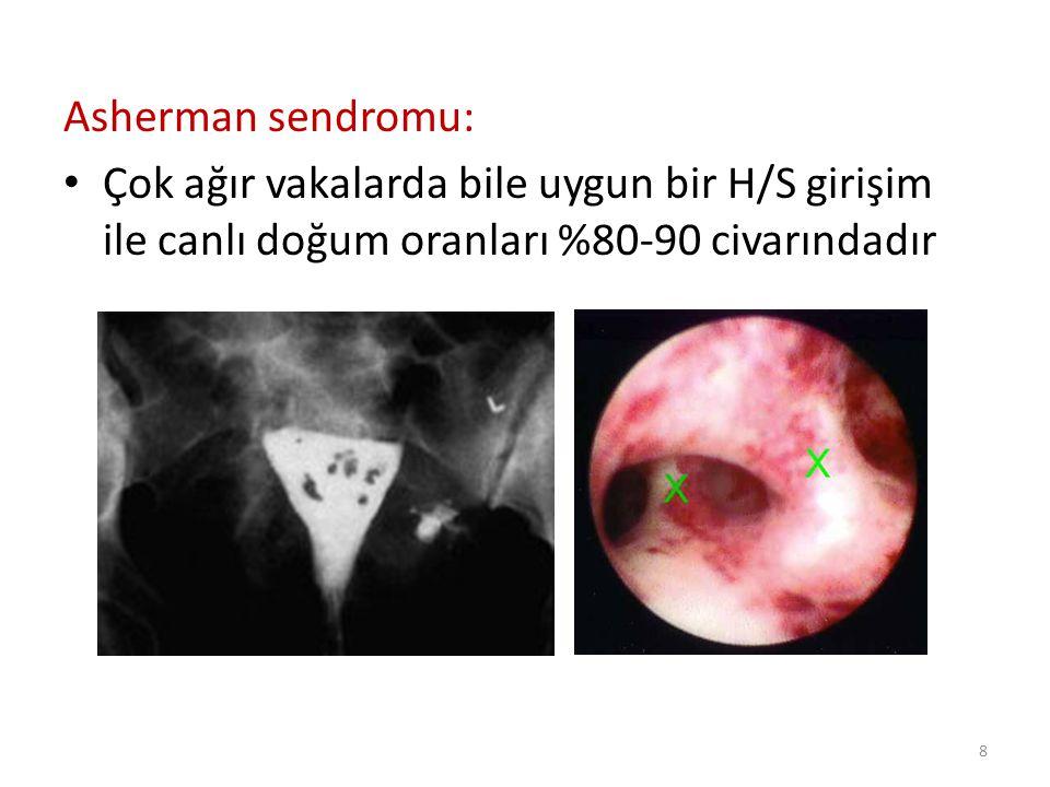 Asherman sendromu: Çok ağır vakalarda bile uygun bir H/S girişim ile canlı doğum oranları %80-90 civarındadır.