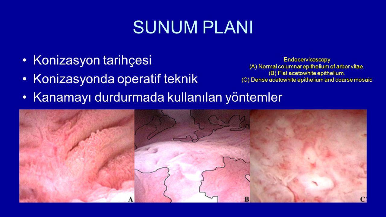 SUNUM PLANI Konizasyon tarihçesi Konizasyonda operatif teknik