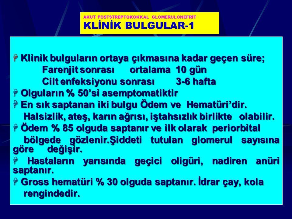 AKUT POSTSTREPTOKOKKAL GLOMERULONEFRİT KLİNİK BULGULAR-1
