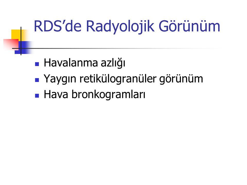 RDS'de Radyolojik Görünüm
