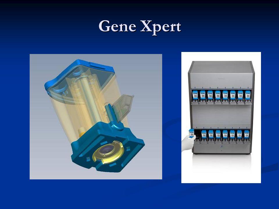 Gene Xpert