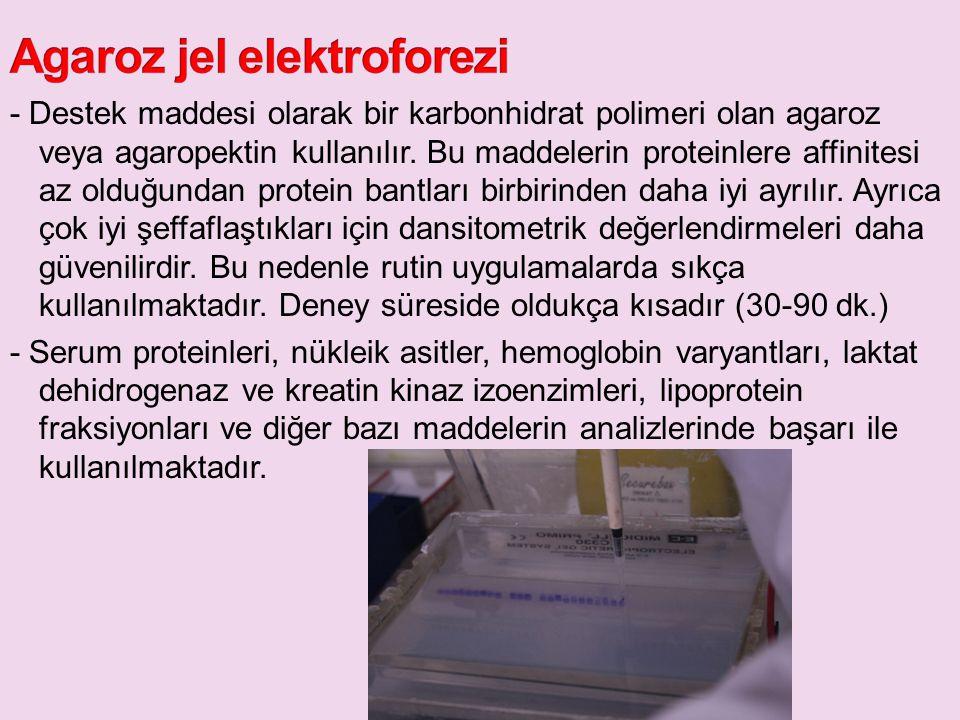 Agaroz jel elektroforezi