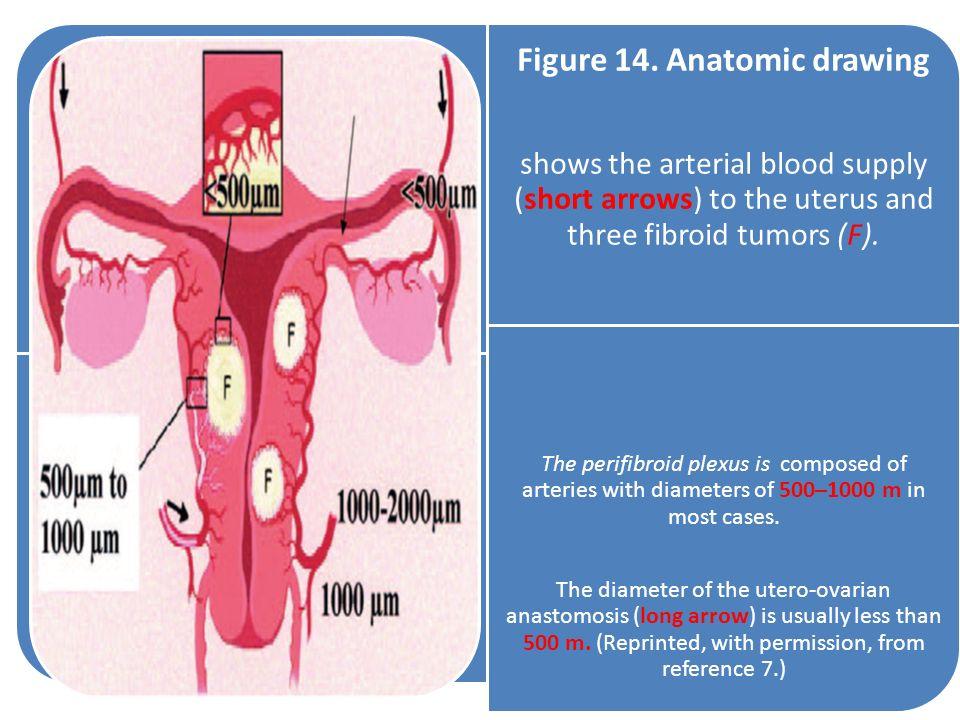 Figure 14. Anatomic drawing