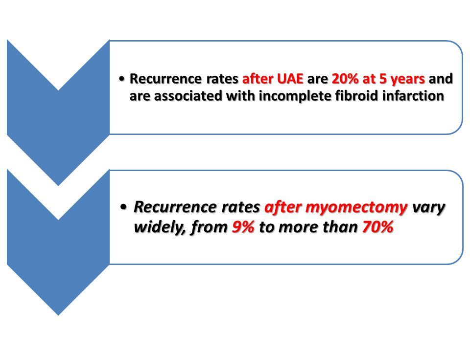 Recurrence rates after UAE are 20% at 5 years and are associated with incomplete fibroid infarction