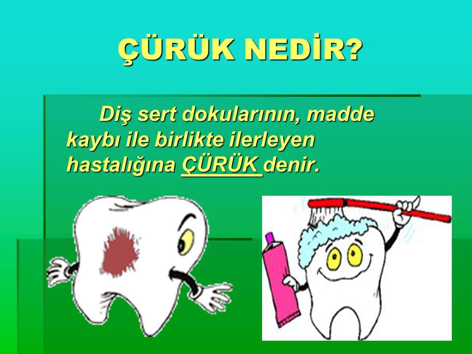 ÇÜRÜK NEDİR Diş sert dokularının, madde kaybı ile birlikte ilerleyen hastalığına ÇÜRÜK denir.