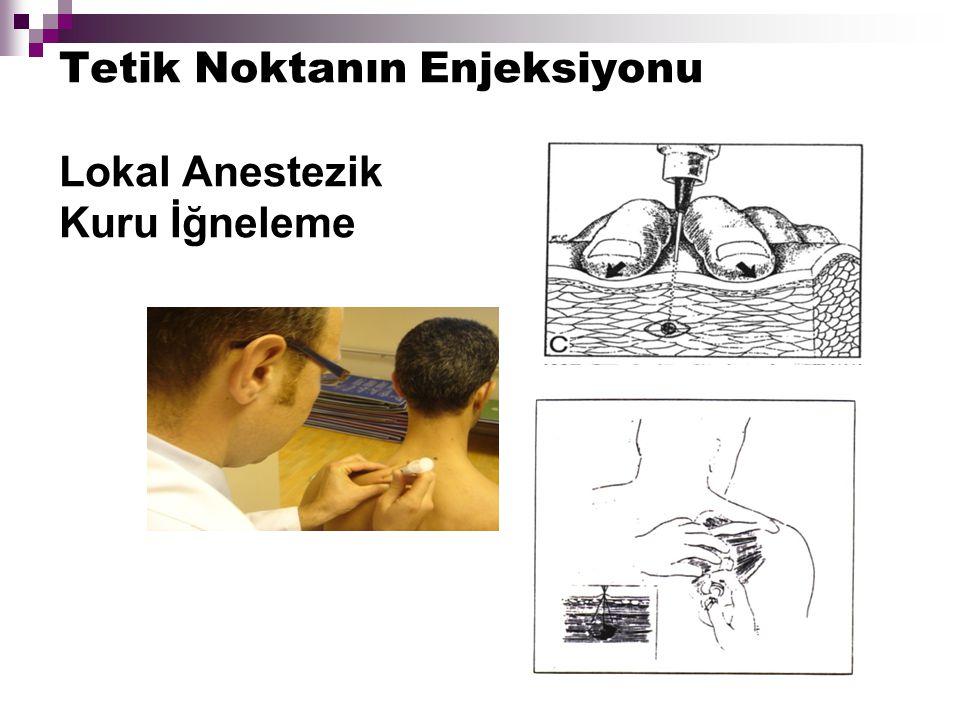 Tetik Noktanın Enjeksiyonu Lokal Anestezik Kuru İğneleme