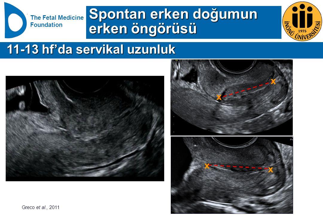 Spontan erken doğumun erken öngörüsü 11-13 hf'da servikal uzunluk x x