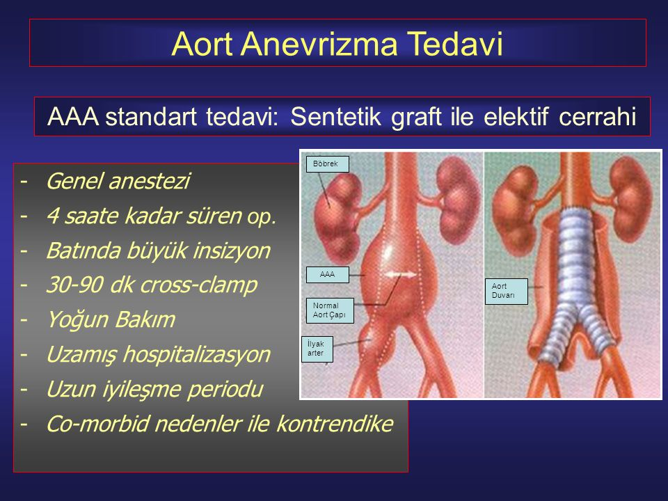 AAA standart tedavi: Sentetik graft ile elektif cerrahi