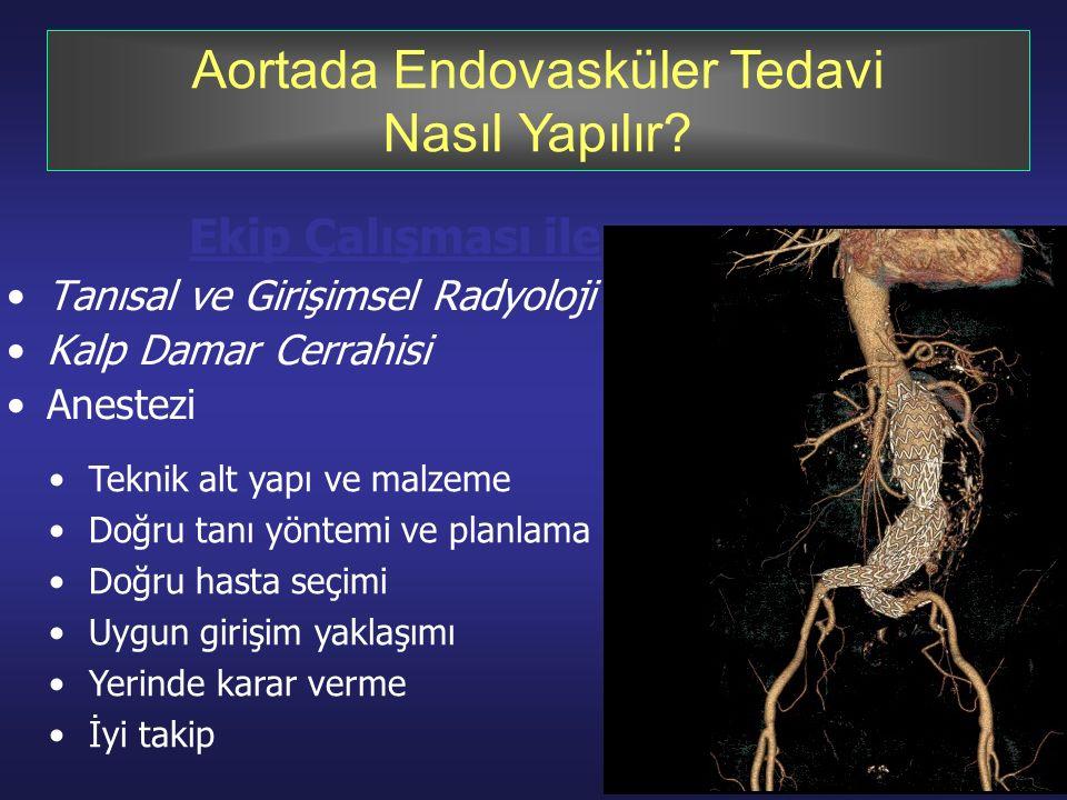 Aortada Endovasküler Tedavi Nasıl Yapılır