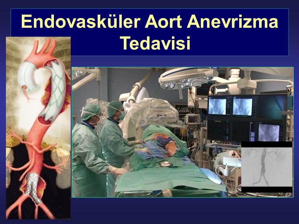 Endovasküler Aort Anevrizma Tedavisi