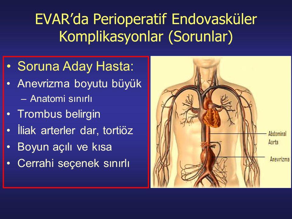 EVAR'da Perioperatif Endovasküler Komplikasyonlar (Sorunlar)