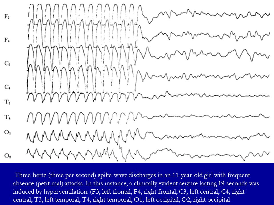 Three-hertz (three per second) spike-wave discharges in an 11-year-old girl with frequent absence (petit mal) attacks.
