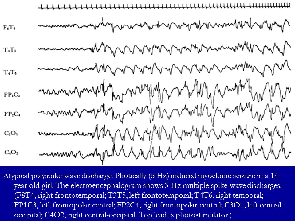Atypical polyspike-wave discharge