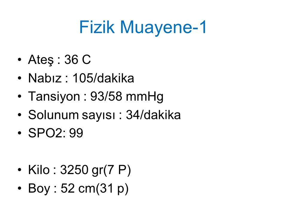 Fizik Muayene-1 Ateş : 36 C Nabız : 105/dakika Tansiyon : 93/58 mmHg